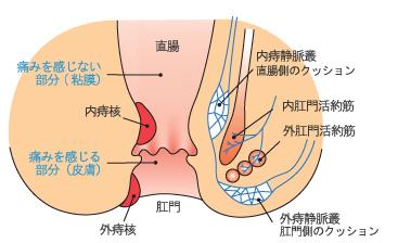直腸 内痔核 痛みを感じない部分(膜下) 外痔核 肛門 痛みを感じる部分(皮膚) 内痔静脈叢直腸側のクッション 内肛門活約筋 外肛門活約筋 外痔静脈叢肛門側のクッション