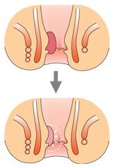 患部投与後の変化(1週間から1ヶ月)